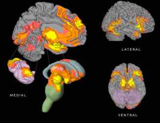 emotional-brain-areas